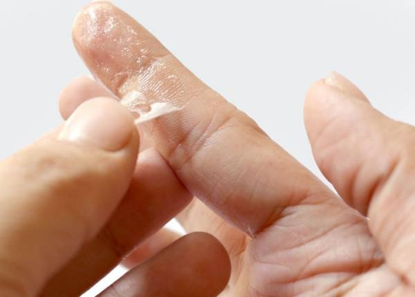 پاک کردن چسب قطره ای